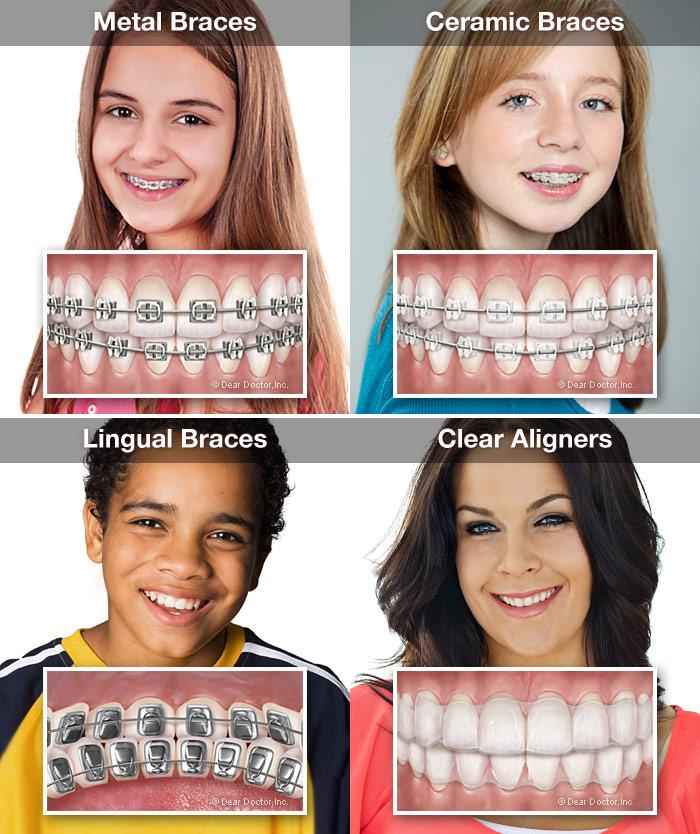 orthodontic-appliances