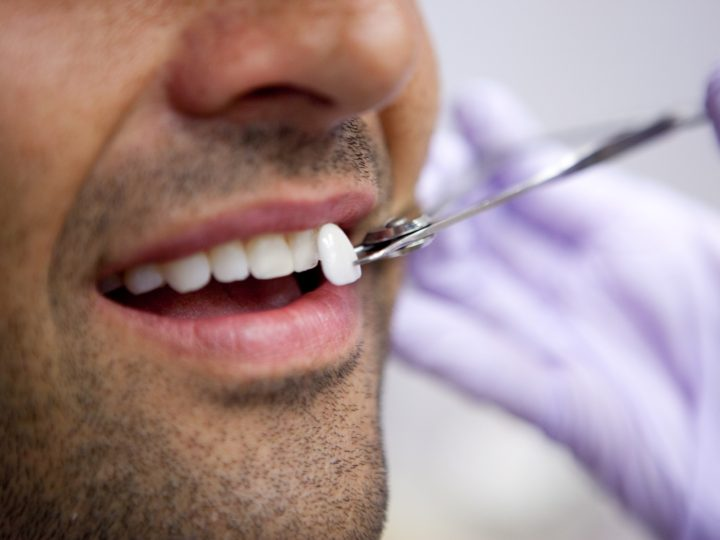 Dental Health and Veneers – Do you need them?