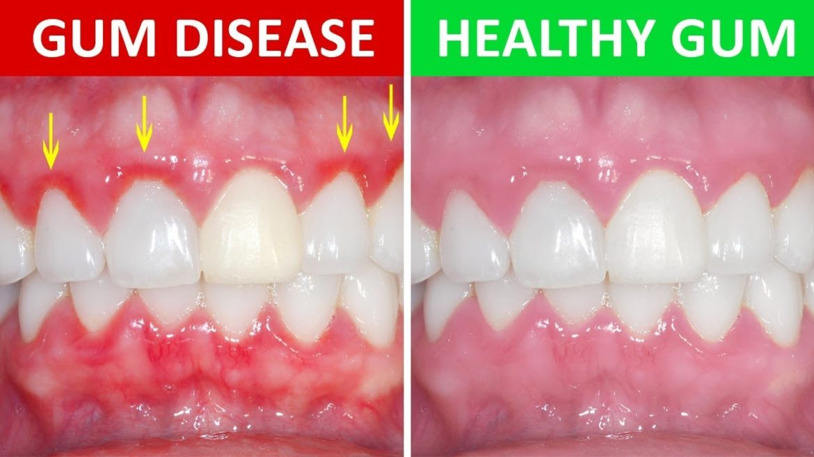 The Most Common Causes Of Gum Disease Regency Dental